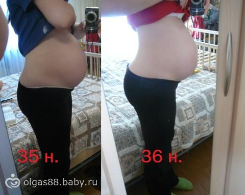 Вздутие живота на 35 неделе беременности