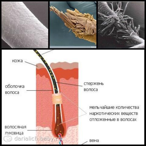 lekarstva-ot-seboreynogo-dermatita-na-golove