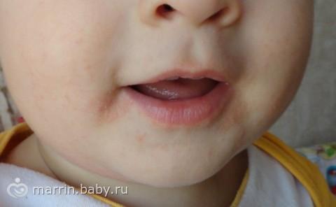 У ребенка покраснения под губами