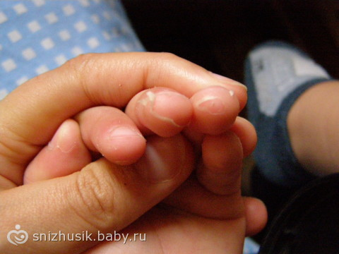 Почему у ребёнка на пальчиках облазит кожа
