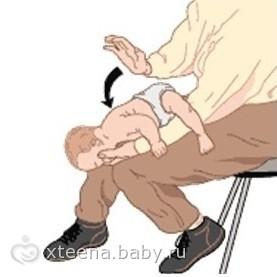 Ребёнок захлёбывается грудным молоком (подавился едой...): Наши действия