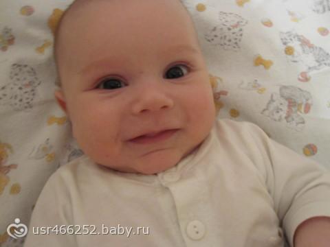 Разный размер глаз у ребенка, разные по размеру глаза у ребенка у ...