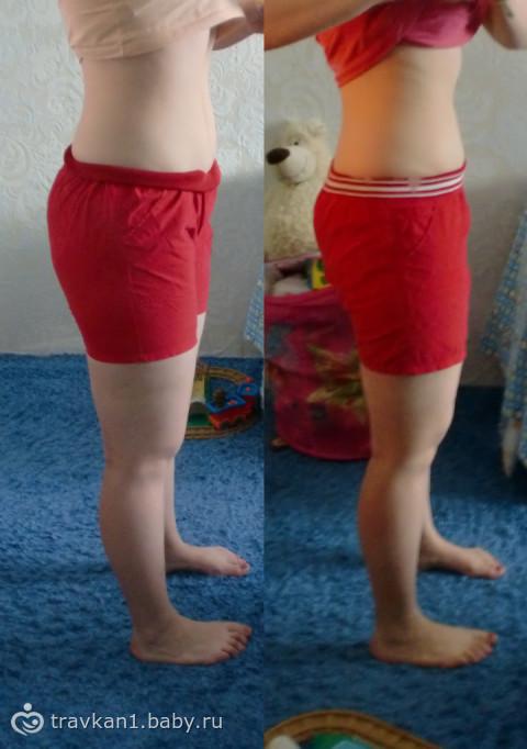 яичная диета до и после фото