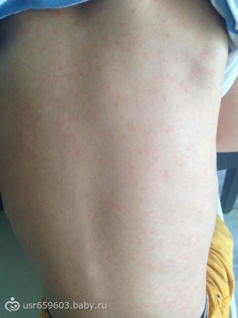 аллергия на лице и шее причины