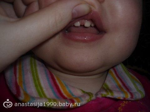 уздечка у ребенка между передними зубами фото