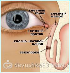 зондирование слёзного канала(